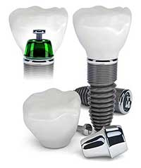 Dental Implants in Pleasant Hill