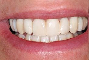 Before and After Dental Implants near Concord